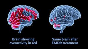 Imagem de uma ressonância magnética do cérebro após sessões de EMDR